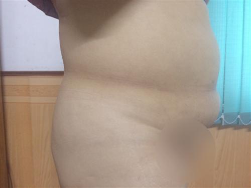 Hút mỡ nội soi và tạo hình thành bụng hoàn toàn