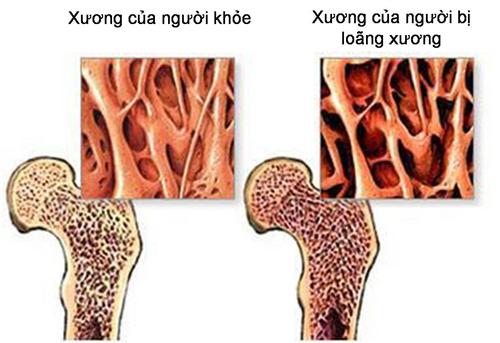 Loãng xương - Cần phòng ngừa ngay từ khi còn trẻ