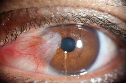 Bệnh mộng mắt