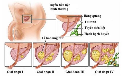 Phát hiện sớm ung thư tuyến tiền liệt