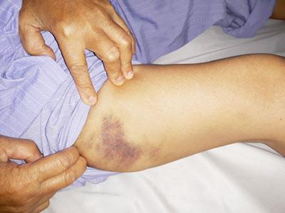 Cảnh giác với tác dụng phụ không mong muốn khi dùng nhóm thuốc chống đông kháng Vitamin K