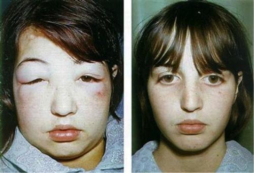 Hội chứng thận hư