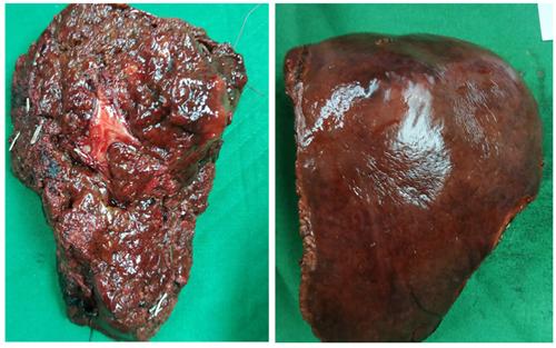 Áp dụng thành công phẫu thuật cắt gan bằng phương pháp Takasaki điều trị u gan