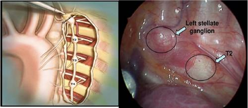Ứng dụng công nghệ cao trong nội soi đốt hạch giao cảm ngực điều trị tăng tiết mồ hôi