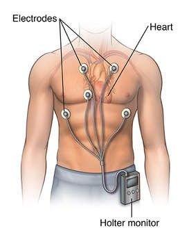 Holter điện tâm đồ