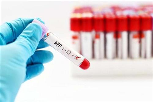 Lợi ích của xét nghiệm định lượng AFP trong máu