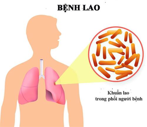 Những điều cần biết về bệnh lao phổi