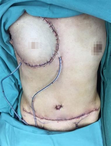 Phẫu thuật tái tạo vú bằng vạt da cơ ngang bụng  trong điều trị ung thư vú