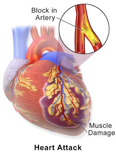 Xét nghiệm Troponin T siêu nhạy - Công cụ hữu ích giúp phát hiện sớm bệnh nhồi máu cơ tim
