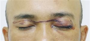 Nguy hiểm: Bị rách mắt vì va phải dây thả diều