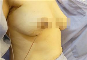 Phẫu thuật bảo tồn tuyến vú cho người bệnh nữ