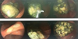 Nội soi cắt khối bã thức ăn lớn trong dạ dày cho người bệnh