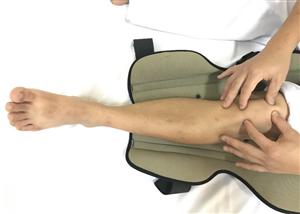 Các bài tập vận động cho người bệnh sau phẫu thuật tổn thương dây chằng chéo khớp gối