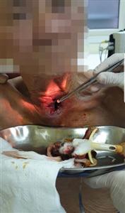 Giòi làm tổ do nhiễm trùng Canuyn