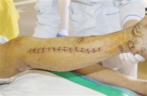 Phẫu thuật cho người bệnh bị tổn thương đụng dập đứt động tĩnh mạch khoeo