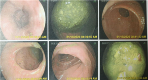 Phẫu thuật nội soi lấy cục bã thức ăn lớn trong ruột và dạ dày cho người bệnh