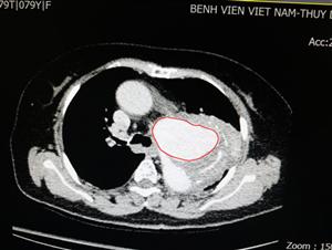 Phình tách động mạch chủ - Bệnh lý không thể chủ quan