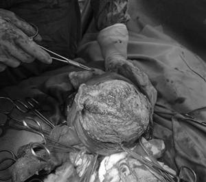 Phẫu thuật lấy thai, bảo tồn tử cung cho sản phụ có khối u xơ tử cung lớn