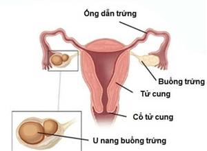 Phẫu thuật nội soi cắt khối u nang buồng trứng xoắn, bảo toàn thai 17 tuần cho sản phụ