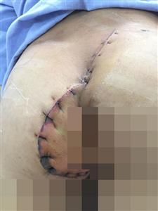 Phẫu thuật cấp cứu cho nam thanh niên bị kính đâm xuyên vùng mông