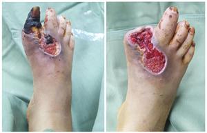 Người phụ nữ phải cắt bỏ ngón chân chỉ vì đắp thuốc nam