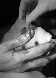 Người phụ nữ bị dập nát ngón tay vì máy xay sinh tố