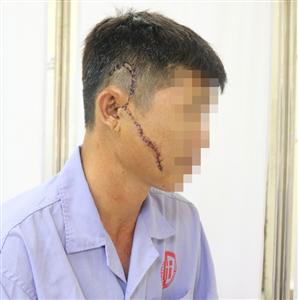 Phẫu thuật cấp cứu cho người bệnh bị khung tôn sắt nặng 50kg rơi vào mặt