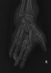 Nguy hiểm dập nát cổ tay, bàn tay vì máy xay đá