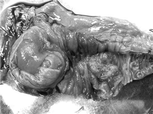 U Lympho ruột non hiếm gặp biến chứng lồng ruột ở người lớn