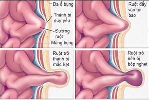 Phẫu thuật cho trẻ sinh non, nhẹ cân bị thoát vị bẹn nghẹt