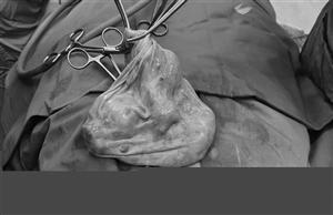 Phẫu thuật cho người bệnh u nang buồng trứng trên nền xơ gan, giảm tiểu cầu