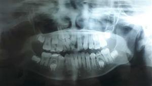 Chậm mọc răng do răng thừa ngầm