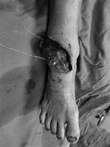 Phẫu thuật cho người đàn ông khỏi tàn phế do máy cắt cỏ văng vào chân